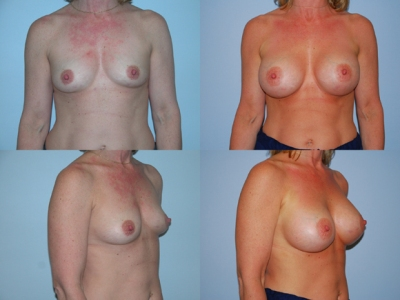 Before and after breast augmentation.