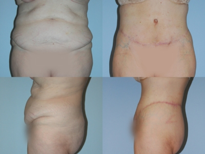 Circumferential Body Lift Before/After Image