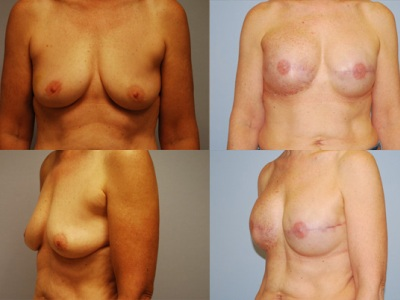 Mastectomy with Implant Before/After Image