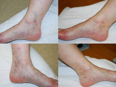 Leg vein treatment before/after images