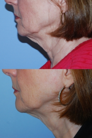 Fractional non-ablative skin resurfacing before/after image