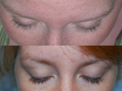 Latisse eyelash before/after image