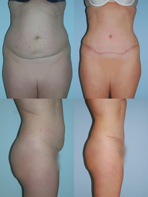 Before and after abdominoplasty.