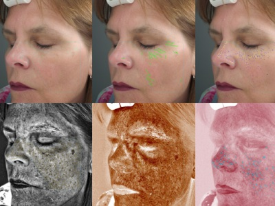 VISIA Complexion Analysis Image