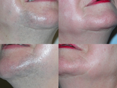 Intense Pulsed Light hair removal before/after image