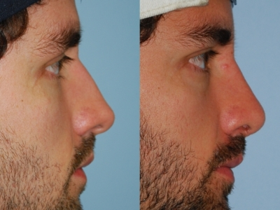 Before and after rhinoplasty.