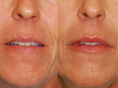 Juvederm before/after image